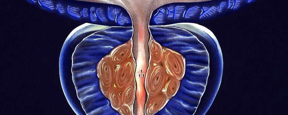Гормоны могут задерживать развитие рака простаты. Отсрочка заболевания на 8 лет