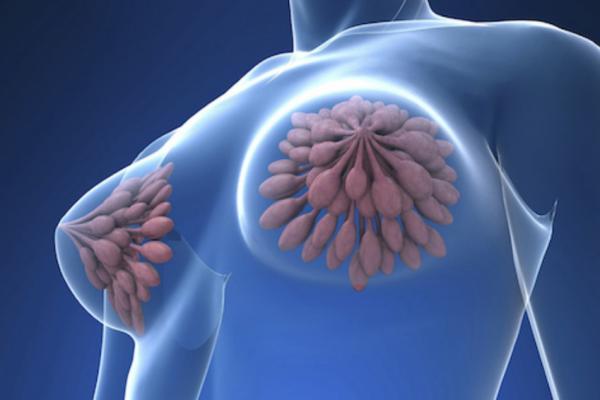 рак груди Телеэндокринолог